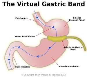 Weight Loss Hypnosis using Virtual Gastric Band